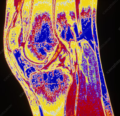 Colour MRI scan of a section through a knee joint