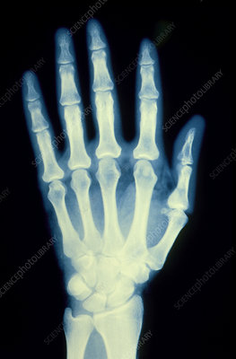 X-ray of a healthy human hand