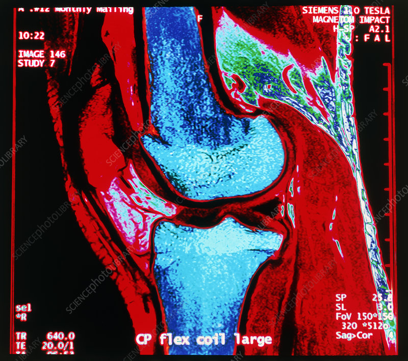 Coloured MRI scan of human knee joint, side view