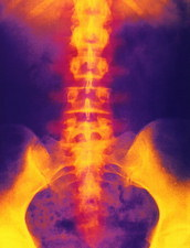 Coloured X-ray of normal lower spine and pelvis