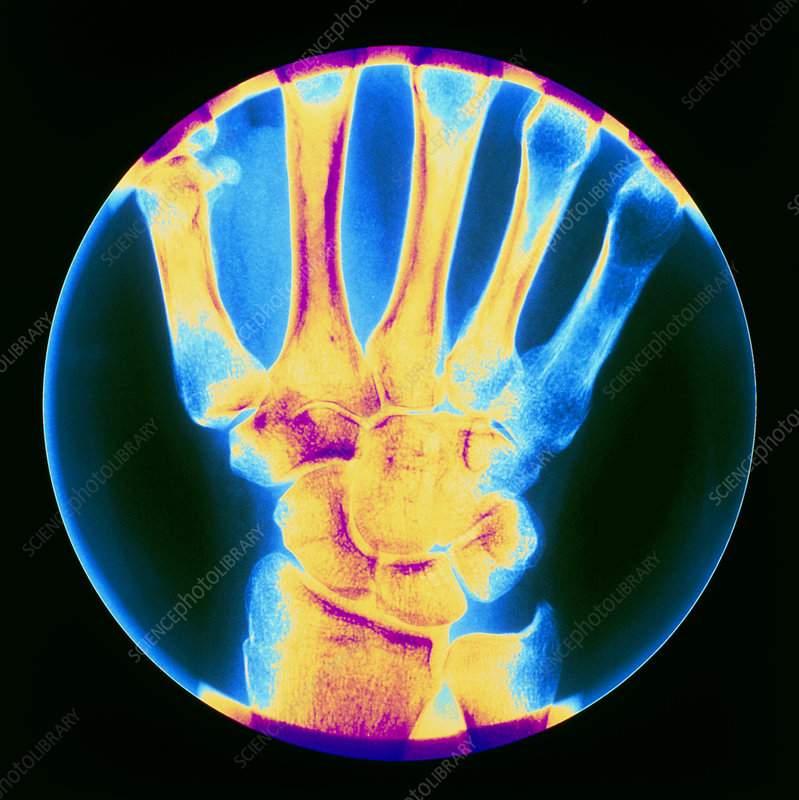 Coloured X-ray of bones in the wrist of the hand