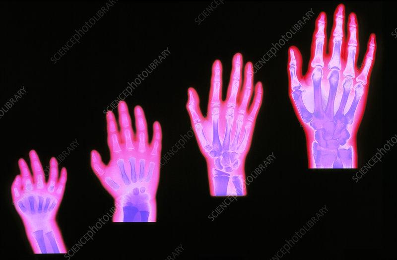 Bones Of The Hand X Ray