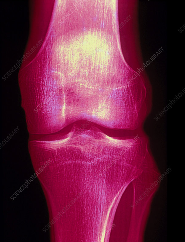 Coloured X-ray of a human knee joint