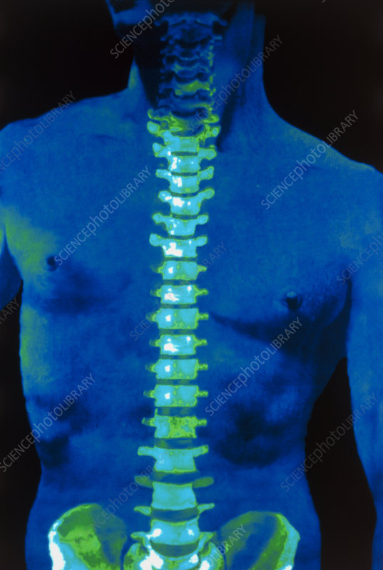 Coloured 3-D CT scan of the human spine