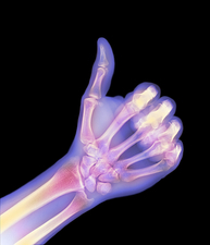 Coloured X-ray of a hand giving a thumb-u