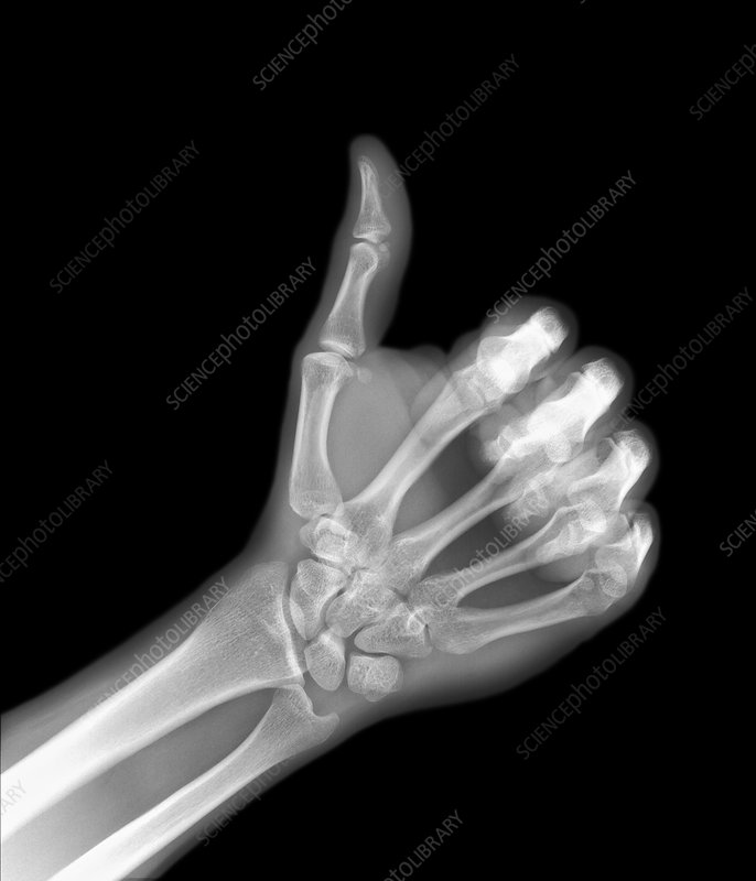 X-ray of a hand giving a thumb-up sign