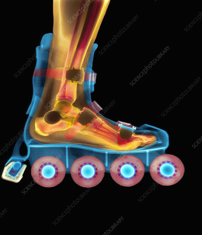 X-ray of a foot in a roller blade