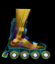 Foot in roller blade, X-ray