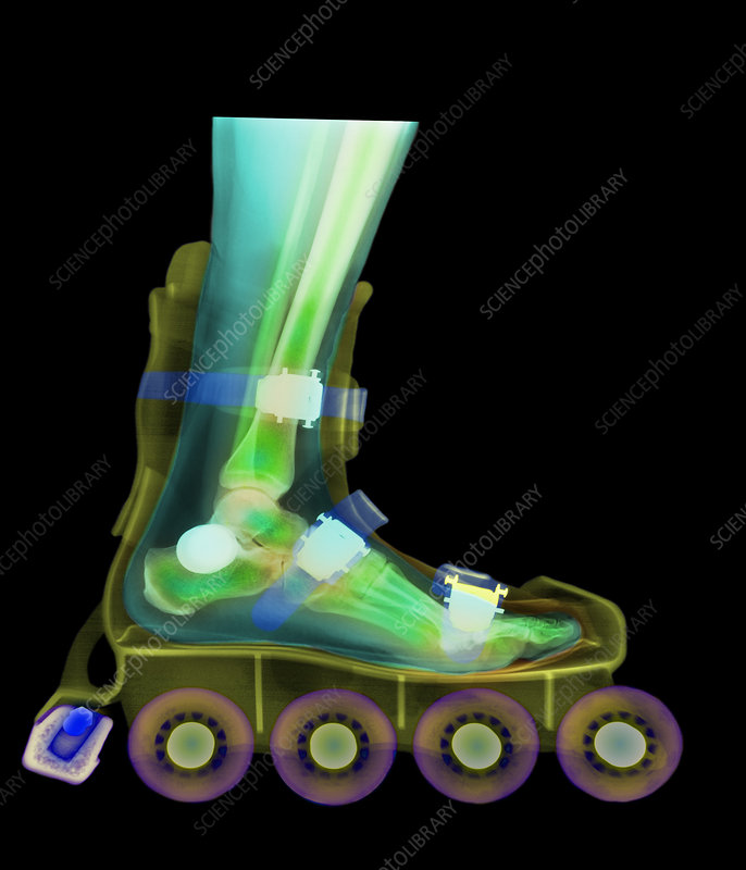 Coloured X-ray of a foot in a roller blade