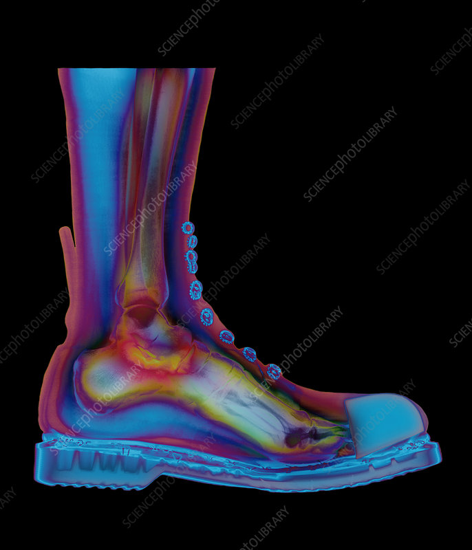 X-ray of man's foot in a Doc Marten boot