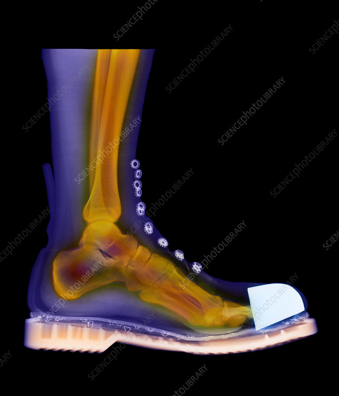 Coloured X-ray of man's foot in a Doc Marten boot