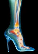 Woman's foot in high-heel shoe, X-ray