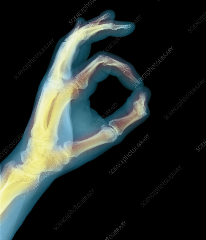 Coloured X-ray of a hand with fingers forming O
