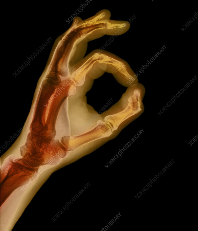 X-ray showing okay sign