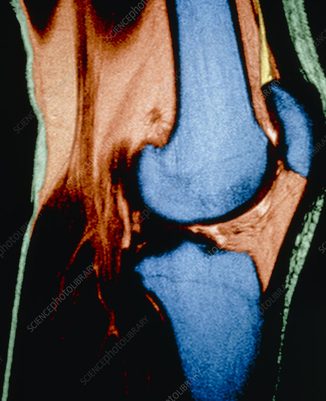 Coloured MRI of a human knee joint