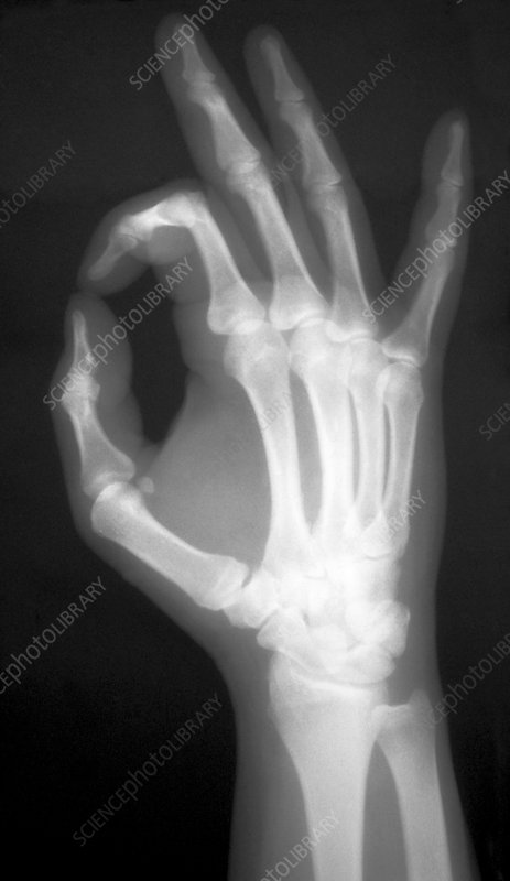 X-ray of a hand with finger and thumb forming O
