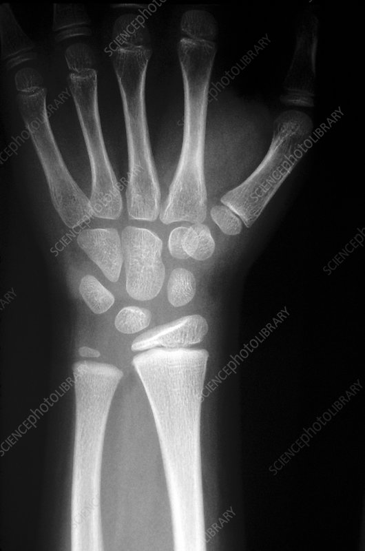 X-ray of the bones in the human wrist