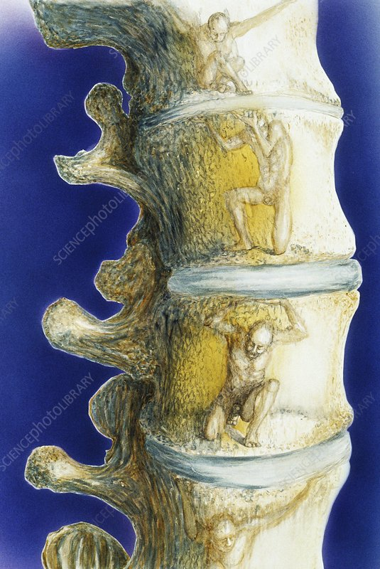 Conceptual artwork of vertebrae in the spine