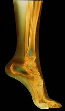 درمان درد پشت پاشنه پا(تاندونیت آشیل)