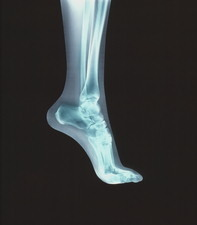 Coloured X-ray of the bones in the foot