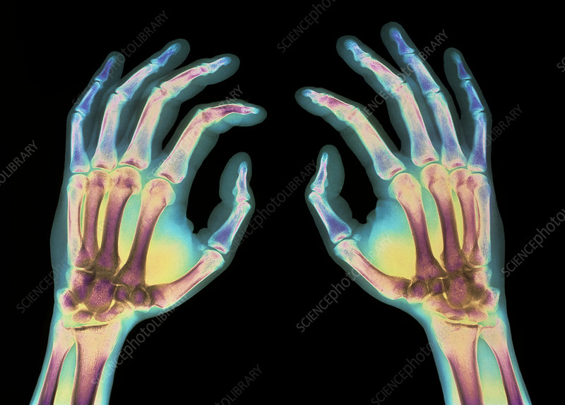 Coloured X-ray of healthy human hands