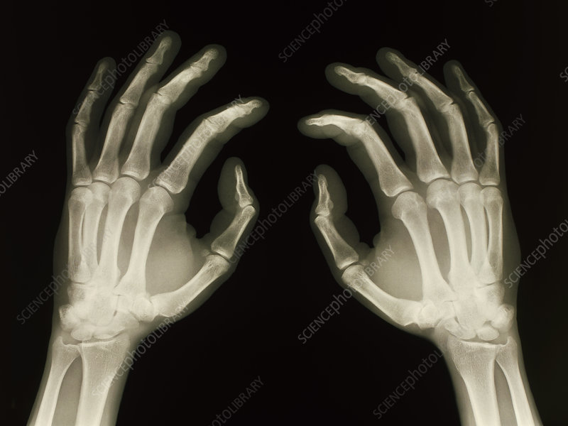 X-ray of healthy human hands