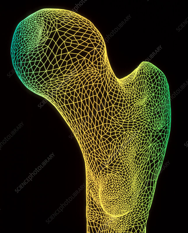 Head of thigh bone