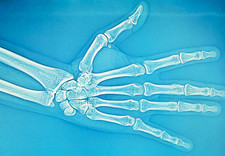 Adult hand X-ray
