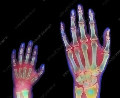 Adult and child hand X-rays