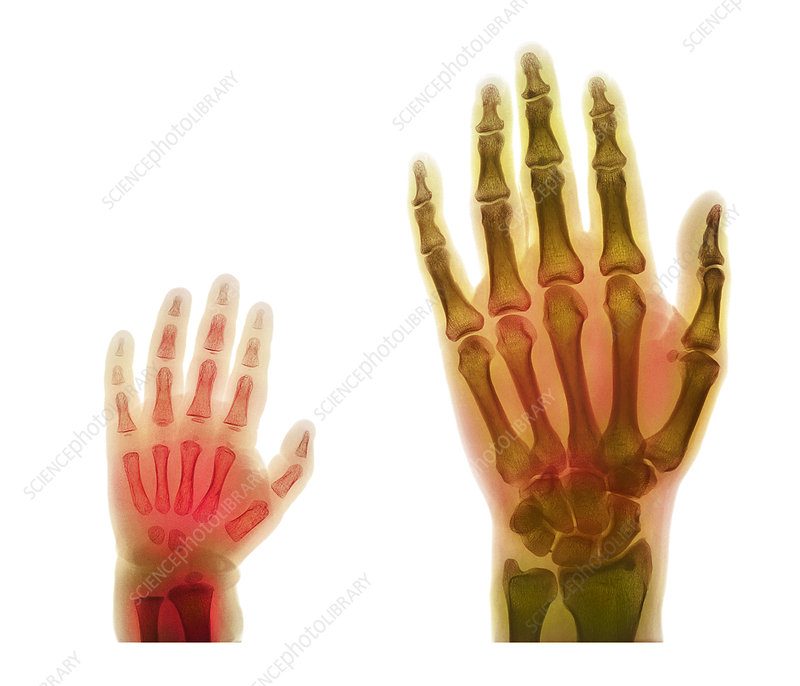 Adult And Child Hand X Rays Stock Image P1160438 Science