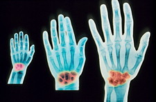 Hand development, X-ray