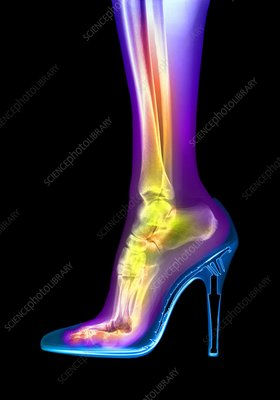 Foot in high heel, X-ray
