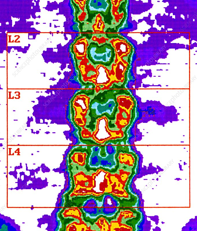 Lower spine, bone density scan