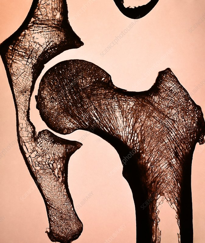 Hip joint, light micrograph