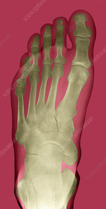 Normal Foot X Ray Stock Image P1160480 Science Photo Library