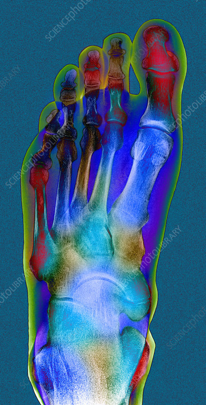 Normal foot, X-ray