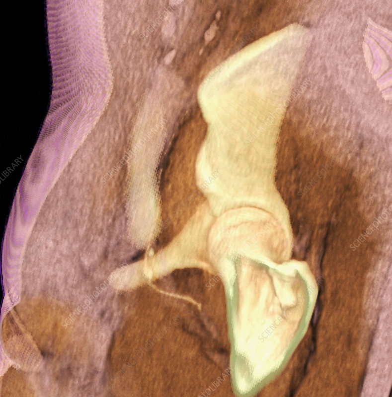 Hip joint, 3D CT scan