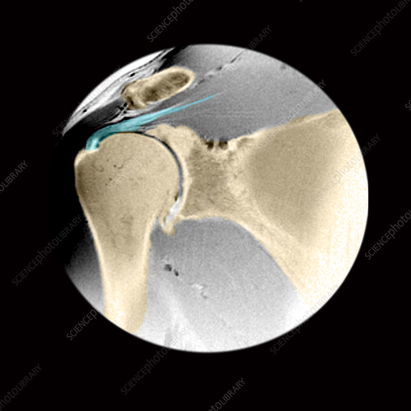MRI of a normal shoulder