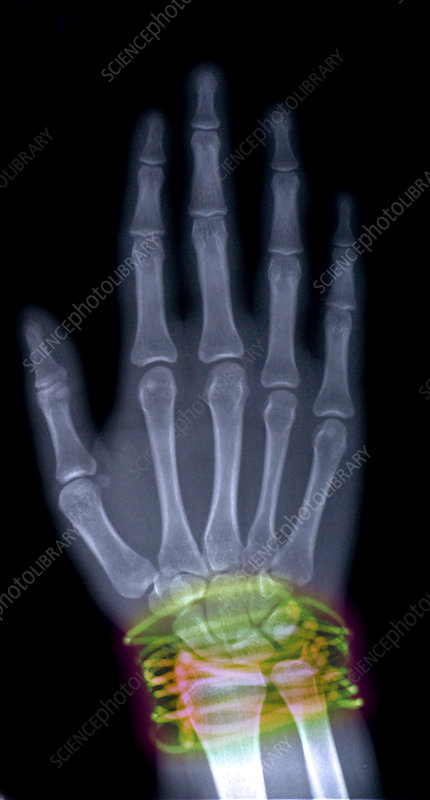X-Ray of Girls Hand With Bracelets