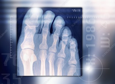 Toes, X-ray