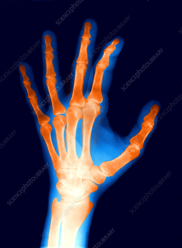 X-Ray of a Normal Female Hand