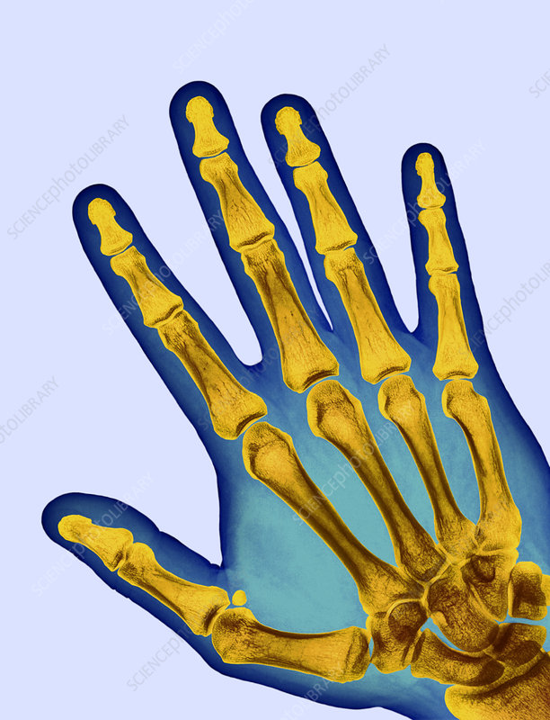 Healthy adult hand, X-ray