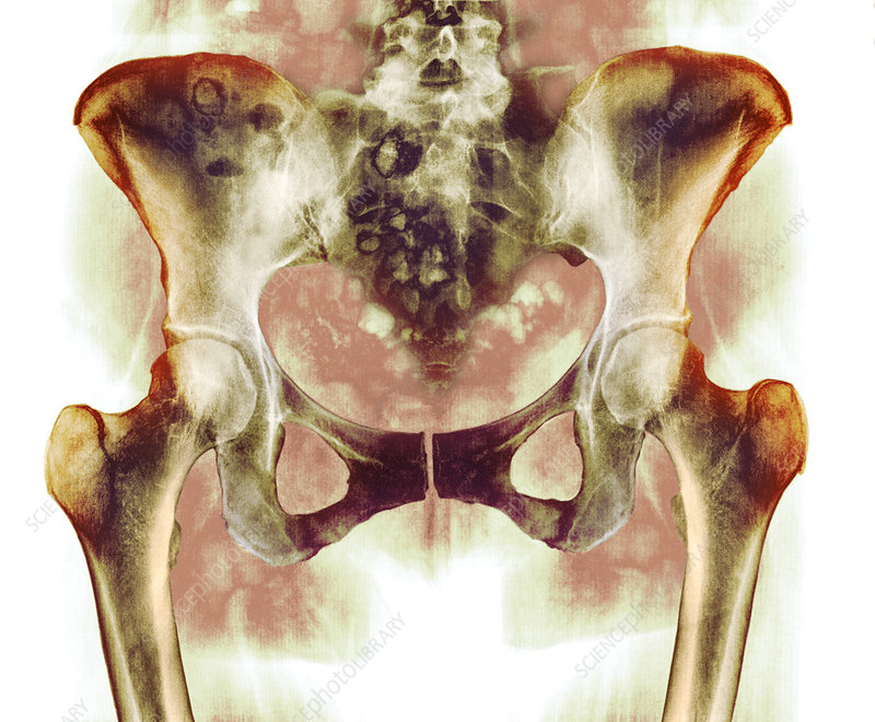 Healthy hip bones, X-ray