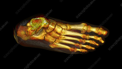 Foot, CT scan