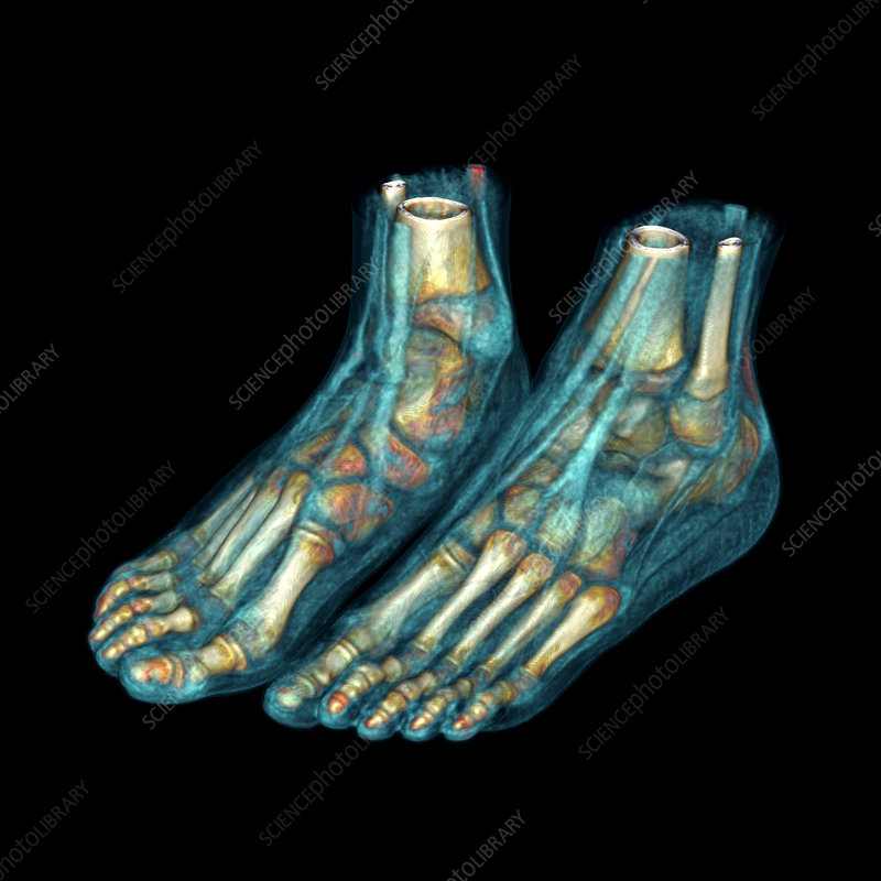 Feet, CT scan