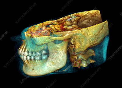 Jaw bones, CT scan