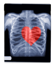 Love, composite X-ray