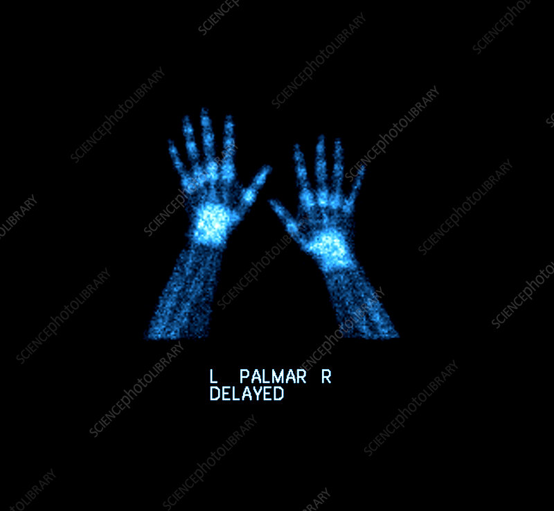 Bone Scan of Normal Hands and Wrists
