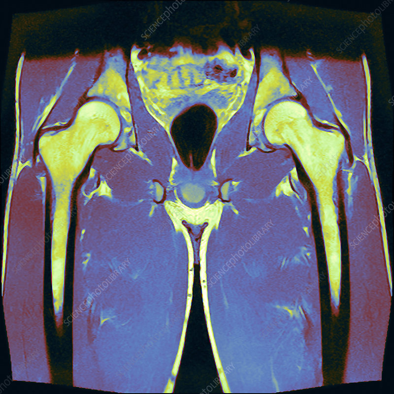 Healthy male hips, MRI scan