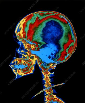 False-colour X-ray of the skull of a young woman